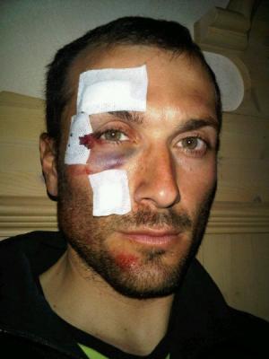 Ivan Basso líder del Liquigas-Cannondale sufrio aparatosa caída