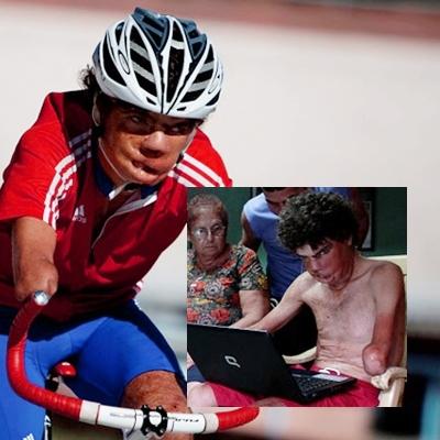 Conoce la historia del ciclista Cubano Damián López, desfigurado y sin antebrazos, le sonríe a la vida
